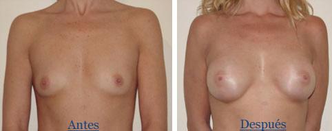 aumento-mamario-de-paciende