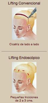 lifting-endoscopico-tradicional