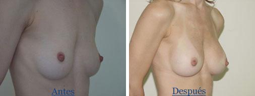 Mamoplastia y embarazo