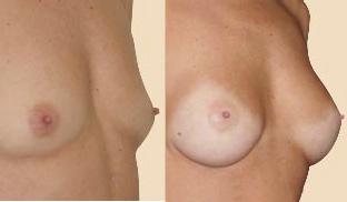 mamoplastia-paciente