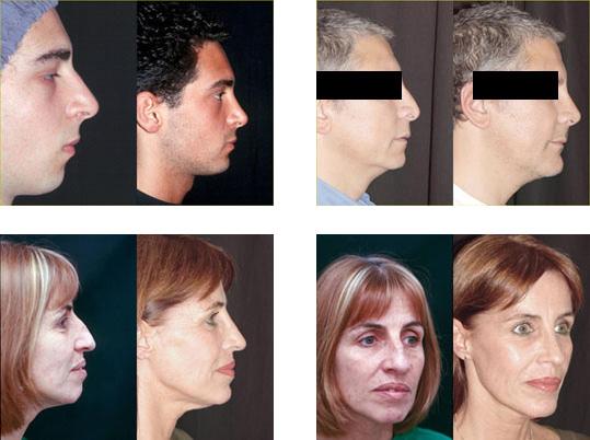 mentoplastia-dr.pinta