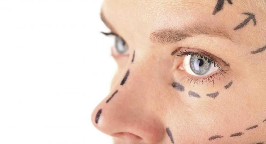 Mitos de la Cirugía Plástica